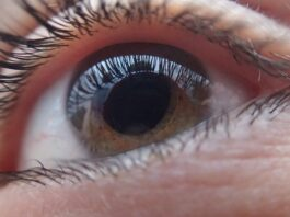 GLAUCOMA & ITS FORMS (S2)