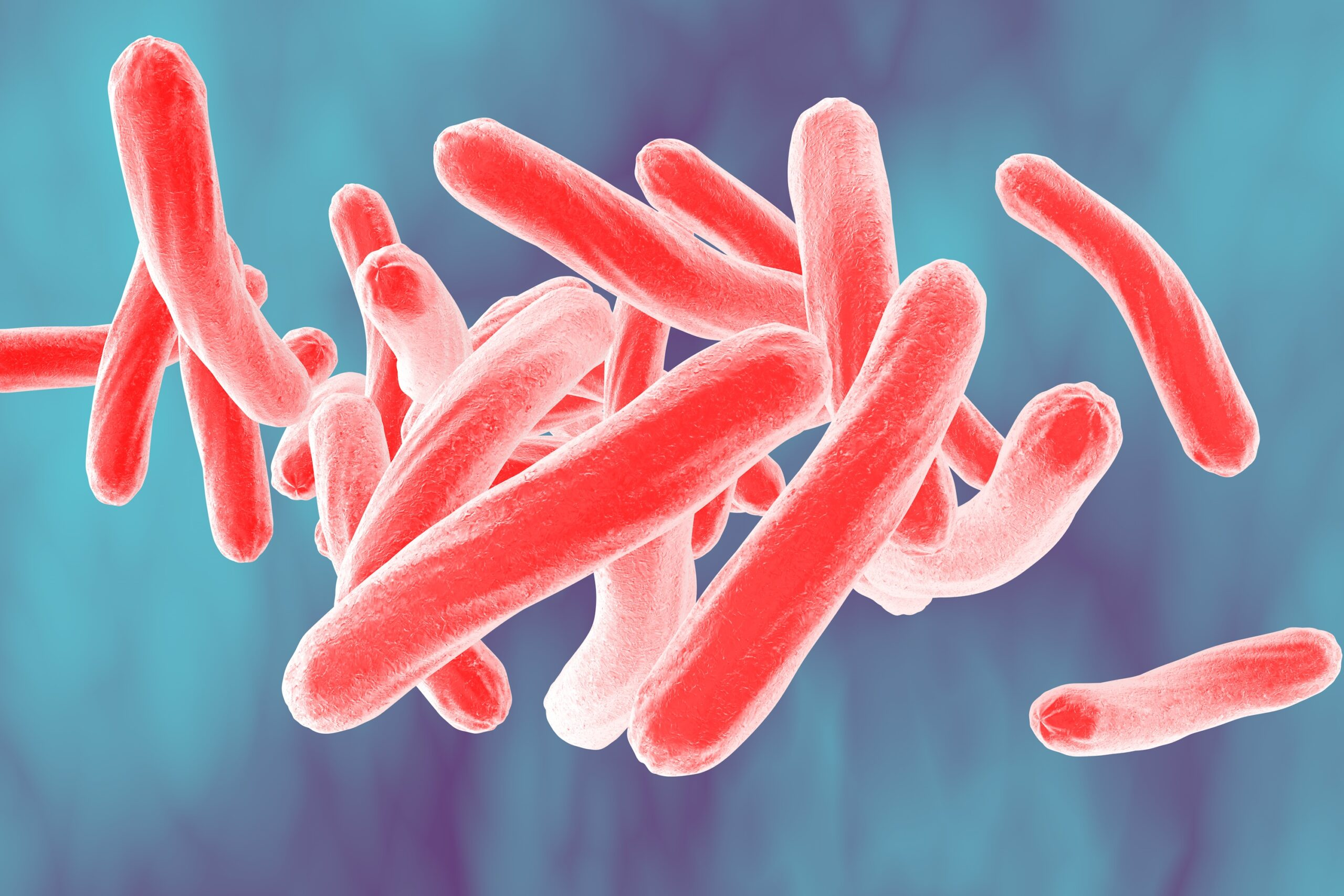 Disease Review: Tuberculosis