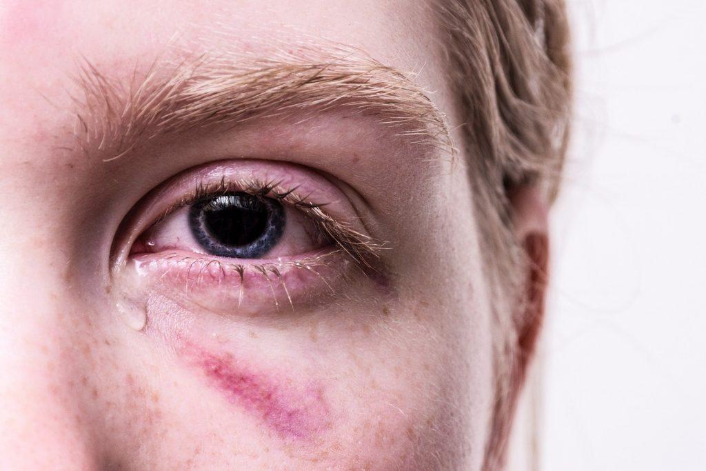 Emotional Trauma Causes Stuttering